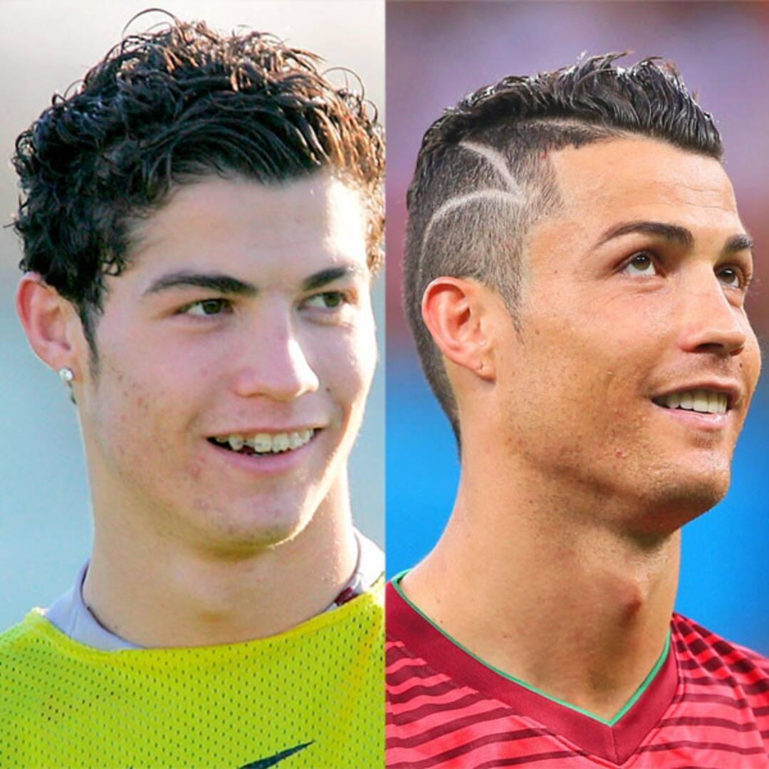 Antes e depois de atletas que passaram por cirurgias