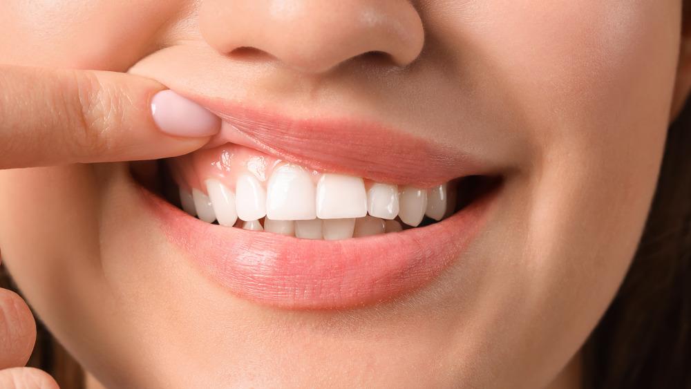 Você pode ver alguns benefícios para a saúde da sua boca e gengiva